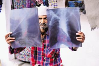 Mohammad Khalid, a resident of New Arif Nagar, says he is still troubled by breathing problems and cysts. Photo: Pradeep Gaur/Mint