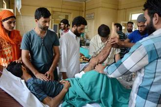 An injured being treated at SMHS hospital in Srinagar. Photo: PTI