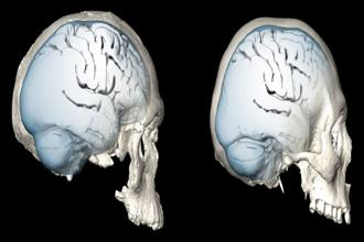 Brain shape evolution in Homo sapiens are shown in this combination image—the 300,000 year-old cranium Jebel Irhoud 1 (L) and present day humans (R)—in this undated handout image released on 24 January, 2018. Photo: Reuters
