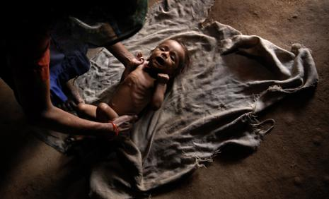 The routine use of antibiotics in the treatment of severe acute malnutrition (SAM) does not have any impact on recovery of affected children. Photo: Abhijit Bhatlekar/Mint