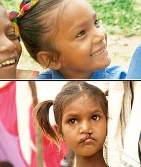 Miracle: Pinki before (below) and after surgery on her cleft lip. Smile Pinki