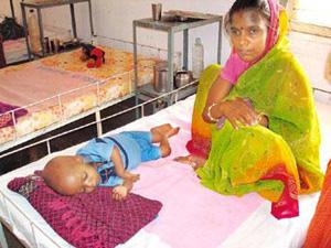 Sorry state: Rabita's son has been undergoing treatment at the Nutrition Rehabilitation Centre in Guna. Liz Mathew / Mint
