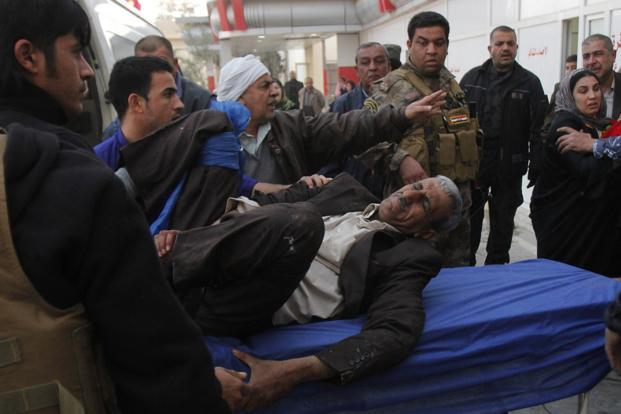 A man wounded by a suicide bomber in Tuz Khurmato city, is treated at a hospital in Kirkuk, 250 km (155 miles) north of Baghdad on Wednesday. Photo: Reuters