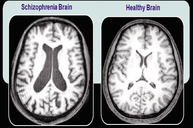Common Mental Disorders - Jebhealth Articles