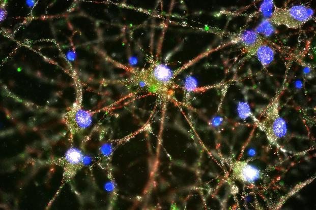 Scientists find genetic, physiological schizophrenia cause