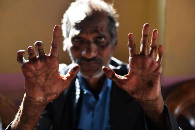 A file photo of a cured leprosy patient showing his disfigured hands in a New Delhi leprosy colony. 127,000 new cases of leprosy were reported in India during 2013-14. Photo: AFP