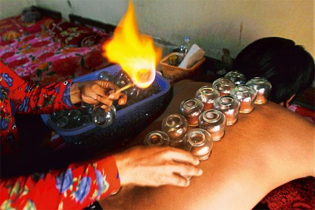Hot glass cups are placed on the body. Photo: Heng Sinith/AP