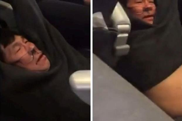 United Passenger Suffered Concussion, Broken Nose, Lost Teeth, Lawyer Says