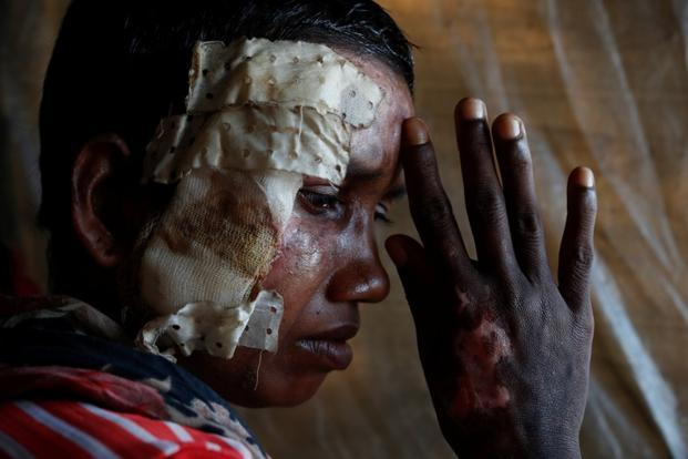 A Rohingya woman shows injuries she sustained during the Myanmar army's operation. Photo: Reuters
