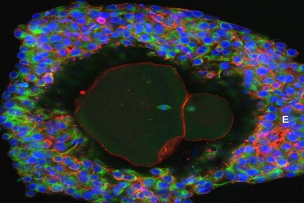 Scientists grow human eggs to maturity in vitro