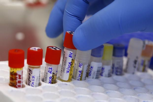 The Artificial Intelligence platform can identify positive cases of Zika even in blood serum analysed 30 days after the start of infection, when the acute phase of the disease is over. Photo: Reuters